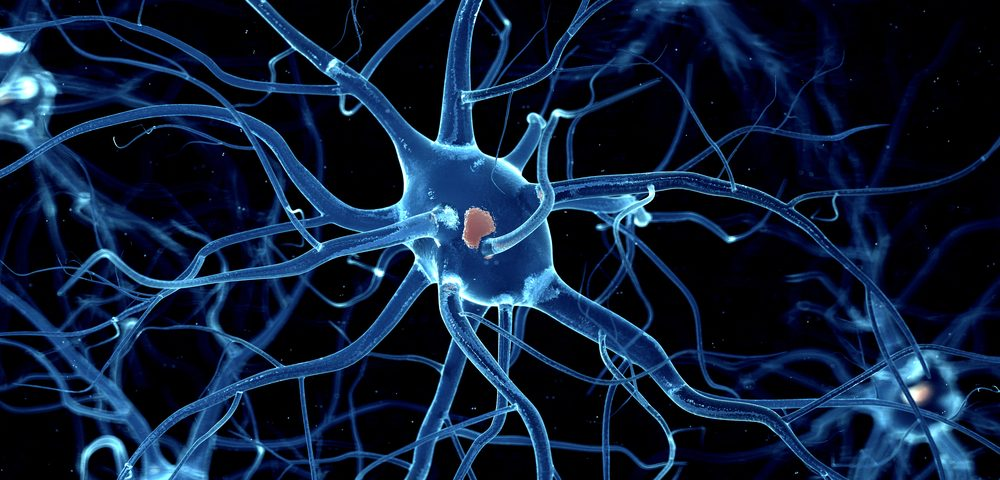 Nerve Stimulation Reduces Angelman Patients' Epileptic Seizures, Study Confirms