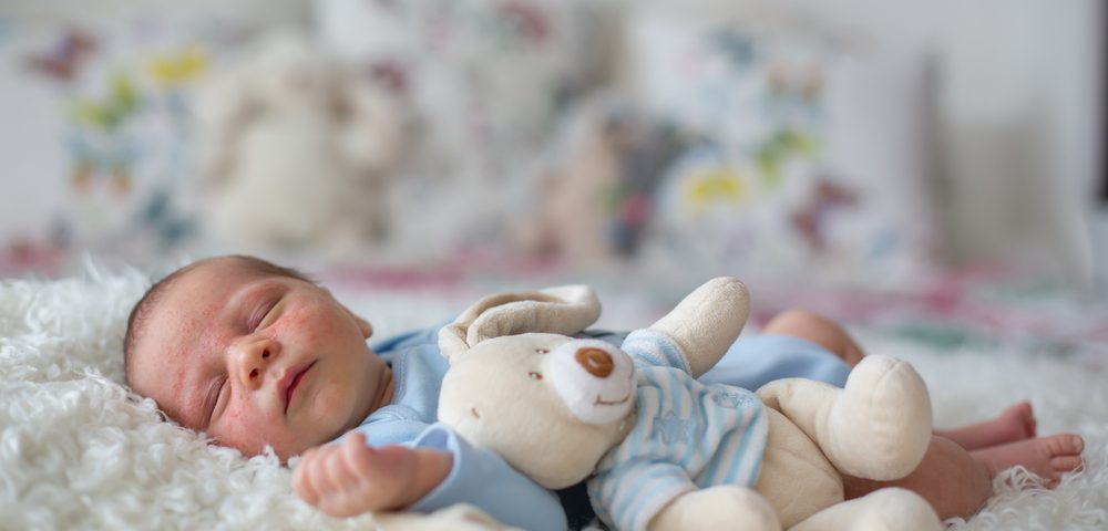 Sleep Problems in Angelman Syndrome Start in Infancy, New Research Finds