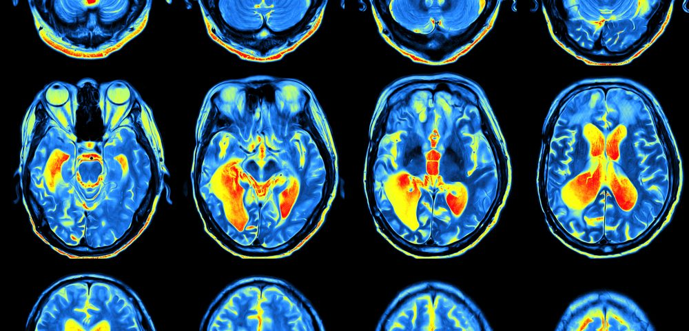 Epilepsy Linked to Structural Changes in Brain's Volume and Thickness, Large Study Shows