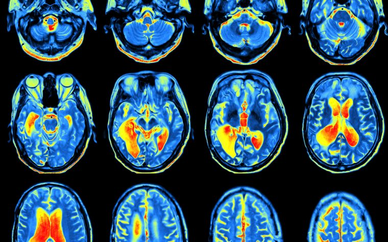 epilepsy and structural changes in brain