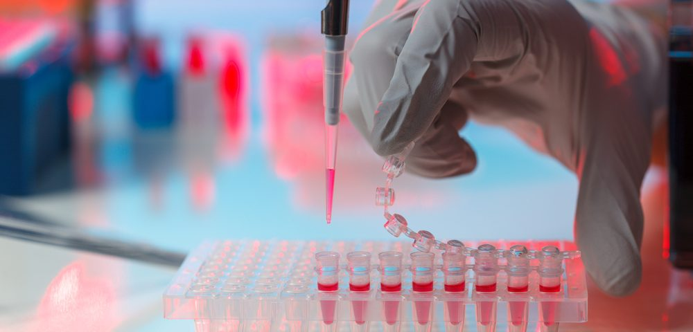 Scientists Develop Quick, Accurate Diagnostic Test for Angelman and Prader-Willi Syndromes
